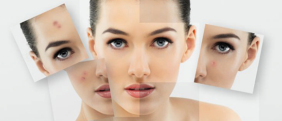 Acne Scar Treatment - Laser Skin Resurfacing